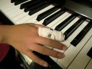 CIMG9401かっくんの指負傷