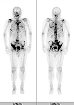 radiology_isotope_photo03-2[1]