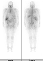 radiology_isotope_photo07-2[1]