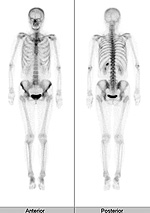 radiology_isotope_photo03-1[1]