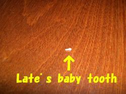 late+s+tooth_convert_20110220233116.jpg