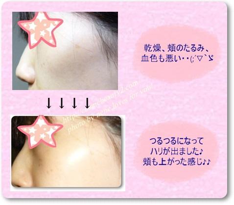 乾燥肌にいい化粧品 1