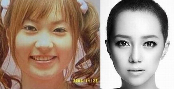 顔の原型留め無いほど整形繰り返している在日韓国人3世のICONIQ