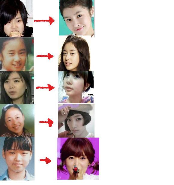 T-ARAも7人中6人が美容整形手術を受けていることが確認され、「before」→「after」の差が大きいと言われている。