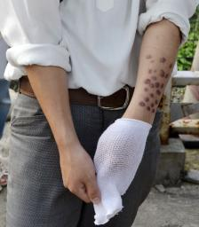 火のついたたばこを腕に押しつけられた痕を見せる男子生徒=6日午後、仙台市内