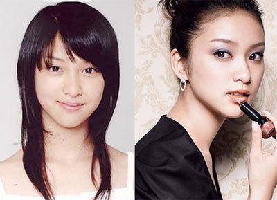 生まれ変わったら韓国人になりたい武井咲は、韓国人(キムテヒ)と同じように目を二重瞼にし、目頭を斬り裂く美容整形手術をしている