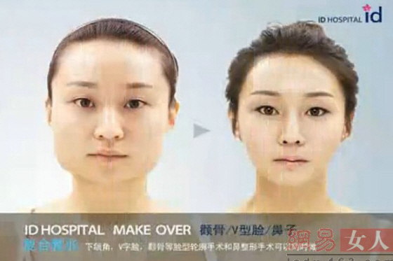 韓国で多いエラ手術は美容整形にカウントされていない可能性