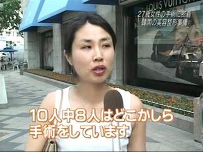 最近の韓国人の若者の5人に4人が美容整形手術を受けている