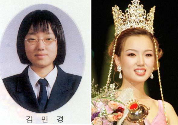 世界一の整形大国の韓国では勿論ミスコリアも美容整形を受けている