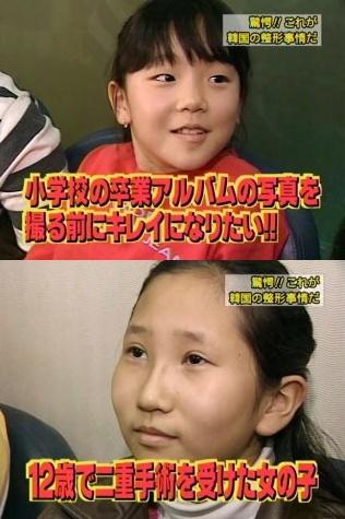 韓国整形 小学生
