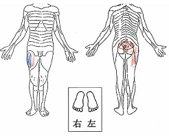 右L5-S1 FS 術前身体図