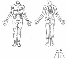 右L5-S1 FS 退院時の身体図
