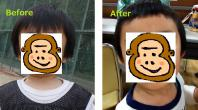 before&after前