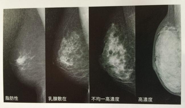 乳腺濃度分類