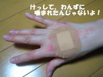 ただでさえキッタない手なのに、ますます、こ汚くなっちゃたなぁ。