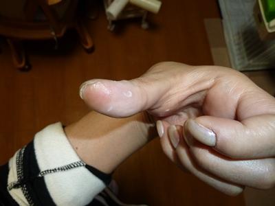 咬まれた親指