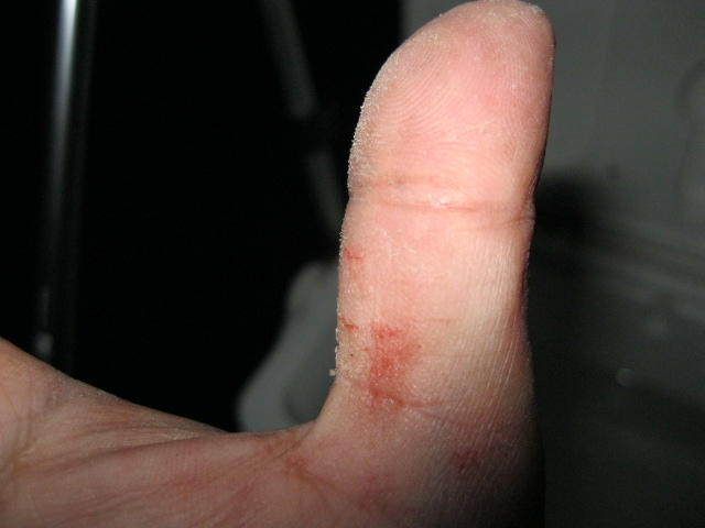 負傷したエビ撒き星人の親指(爆)
