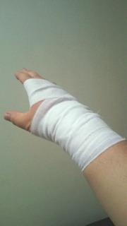 右手首負傷 故障者リスト入り