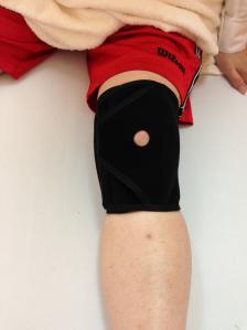 膝蓋骨脱臼治療リハビリ装具大阪