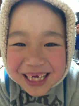 20130205nobu前歯なし