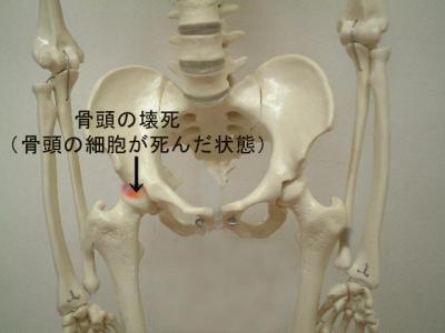 繝ャ繝・げ繝壹Ν繝・せ_convert_20100330022035