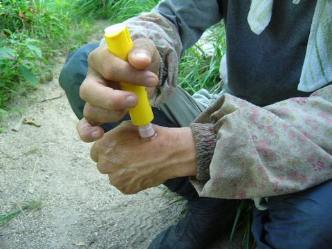 2012年7月25日蜂に刺される (2)