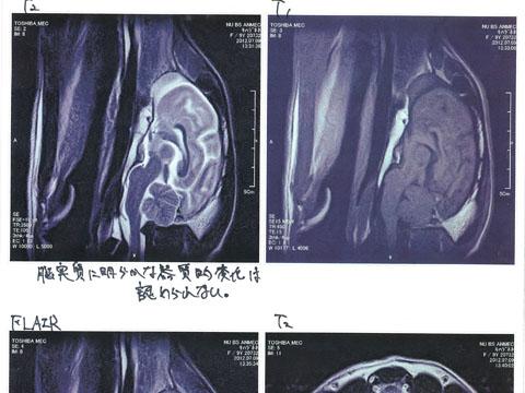 MRI結果