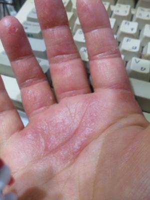 赤く腫れた手