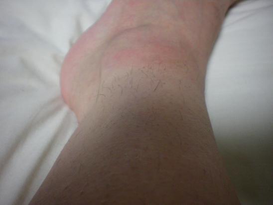 脱毛6回完了後1年3ヶ月の足首