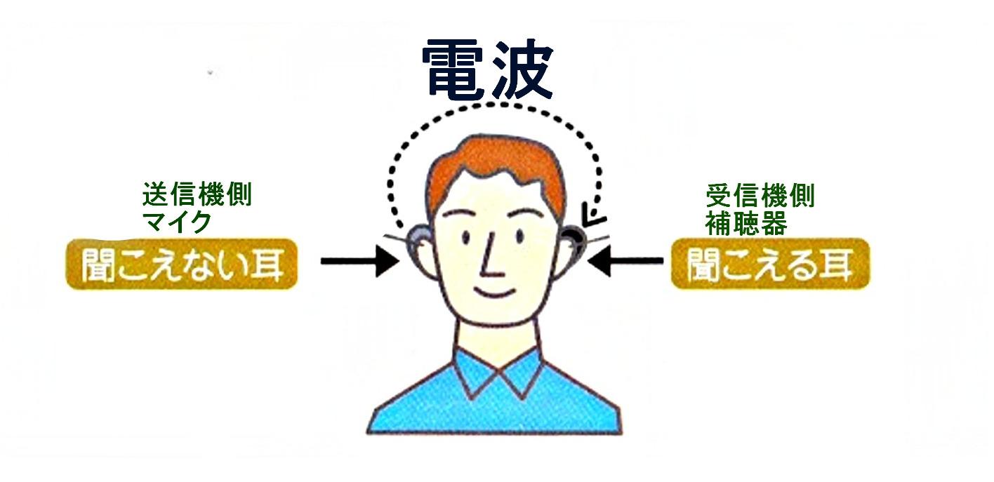 クロス補聴器装着画像