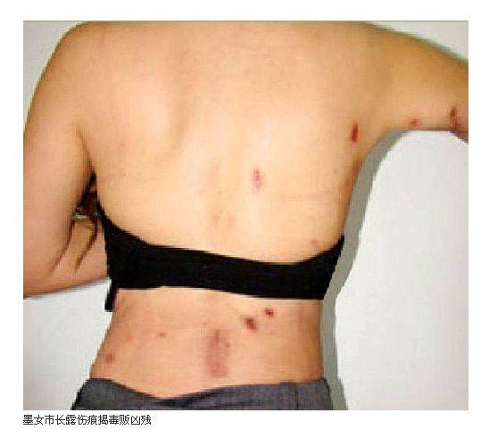 (グロ注意)女の子の解剖・内臓画像 9体目YouTube動画>37本 ->画像>243枚