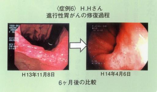 IMG_0001 胃がん