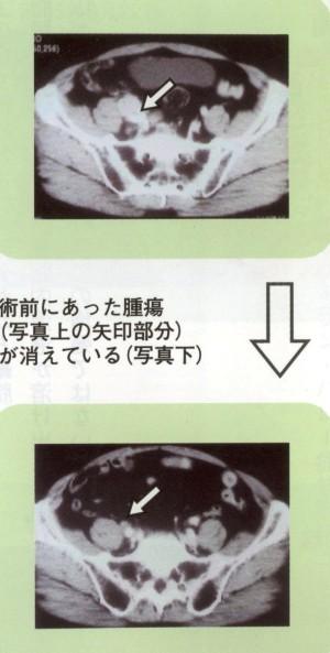 IMG_0004 前立腺がん