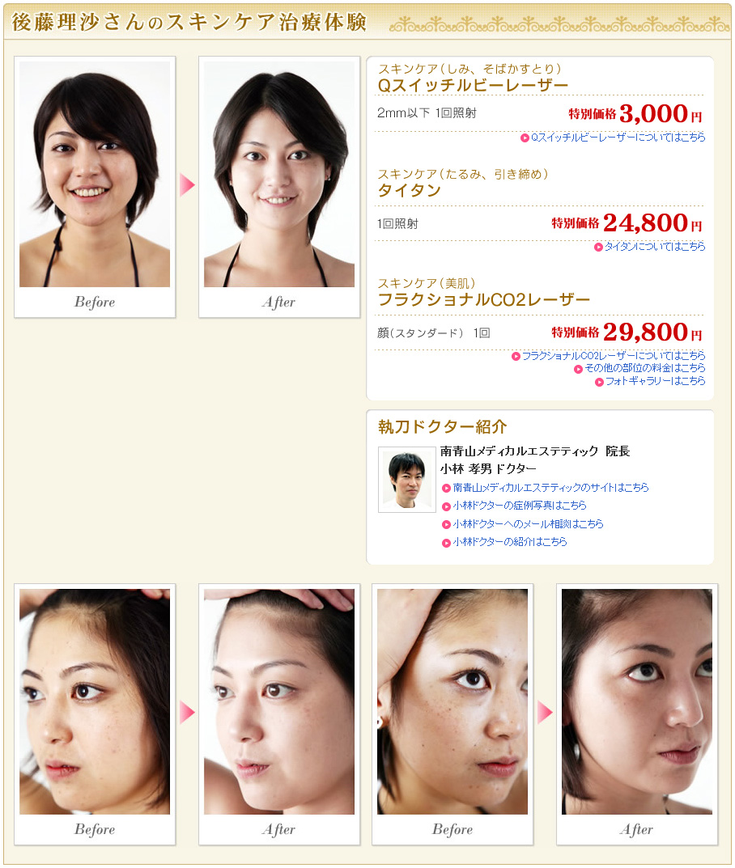 【美少女】後藤理沙【でした】YouTube動画>2本 ->画像>84枚