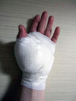 20110131腱鞘炎