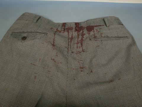 血液シミ背広20111228前5