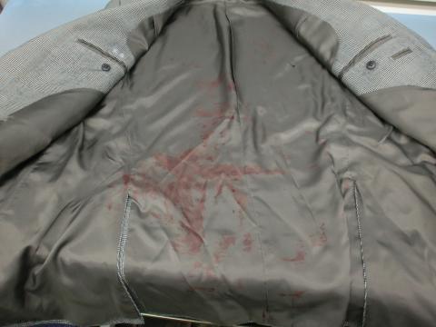血液シミ背広20111228前2