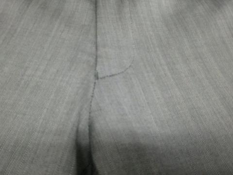 股の黄ばみ20120525後2