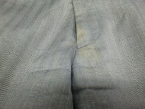 股の黄ばみ20120525前2