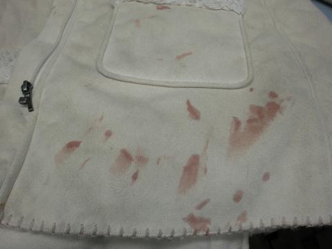 20130121血液シミコート前2