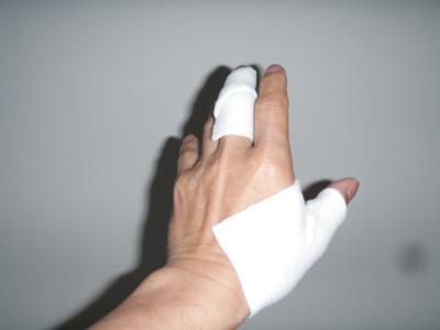 親指の炎症