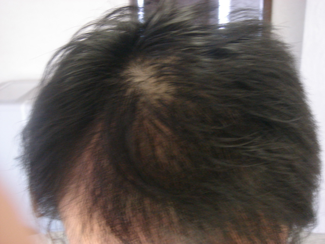 剤 かんきろう 効果 育毛