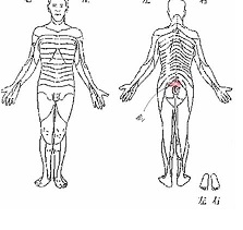 右L5-S1 FS 術後1週間の身体図